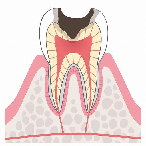 C3(神経の虫歯)